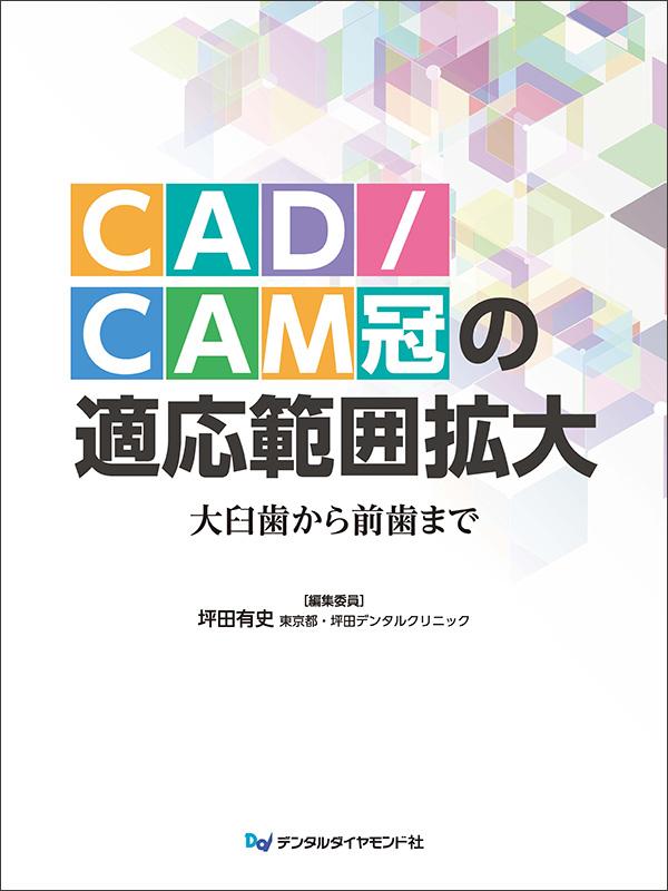 """CAD/CAM冠の適応範囲拡大 ~大臼歯から前歯まで~"