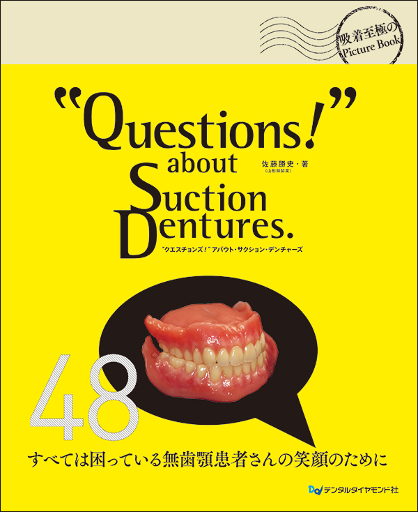 """""""Questions!"""" about Suction Dentures."""